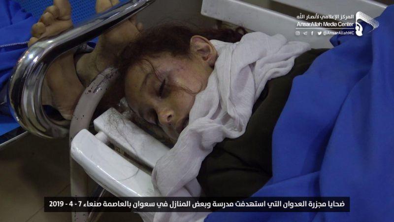 """""""الصحة"""" اليمنية للمجتمع الدولي: لتقديم قيادات العدوان للمحاكم الدولية"""