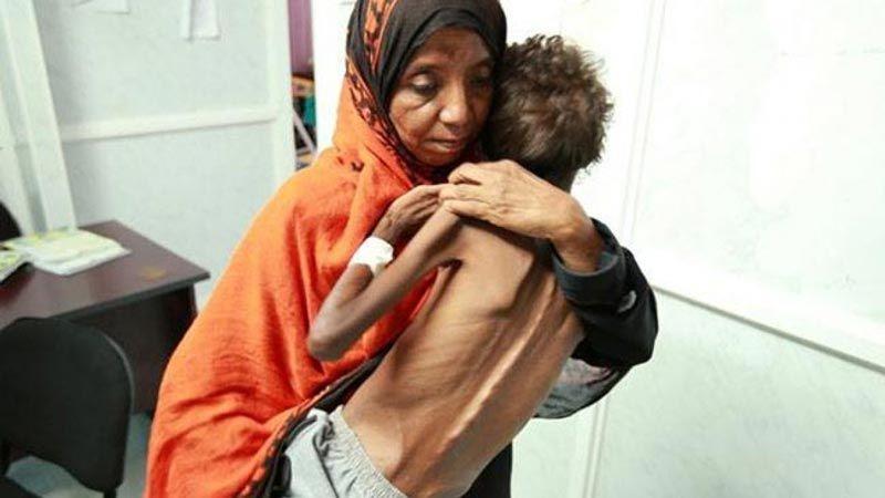 """""""اليونيسف"""": أطفال اليمن على شفا المجاعة"""