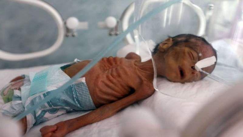 وزارة الصحة اليمنية تدعو أحرار العالم إلى التحرك لرفع الحصار