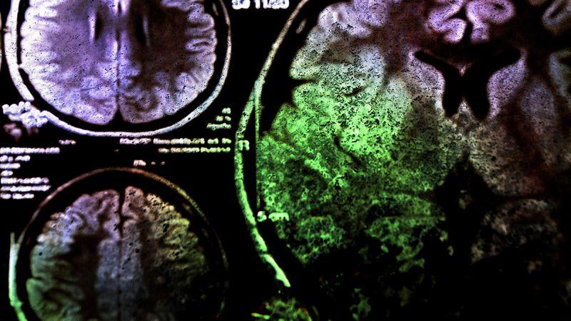 اكتشاف علاجٍ لإبطاء شيخوخة الدماغ