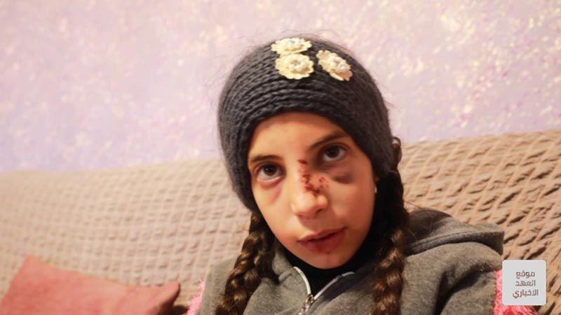 هكذا نجت الطفلة الفلسطينية حلا من جريمة صهيونية مركبة
