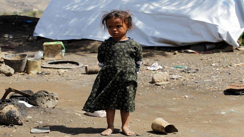مزيج كارثي من المخاطر يهدد أطفال اليمن