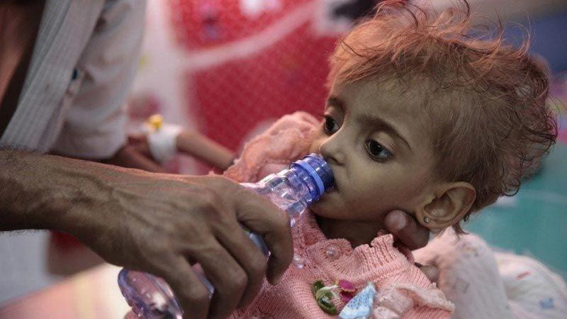 """""""سي إن إن"""" تعترف: الحصار السعودي أدى إلى تفاقم المجاعة في اليمن"""