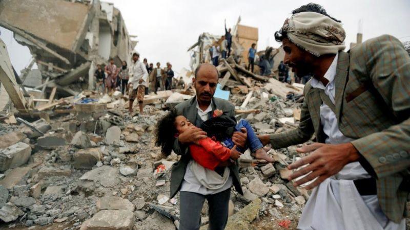 اليمن.. وصمة العار على جبين الانسانية