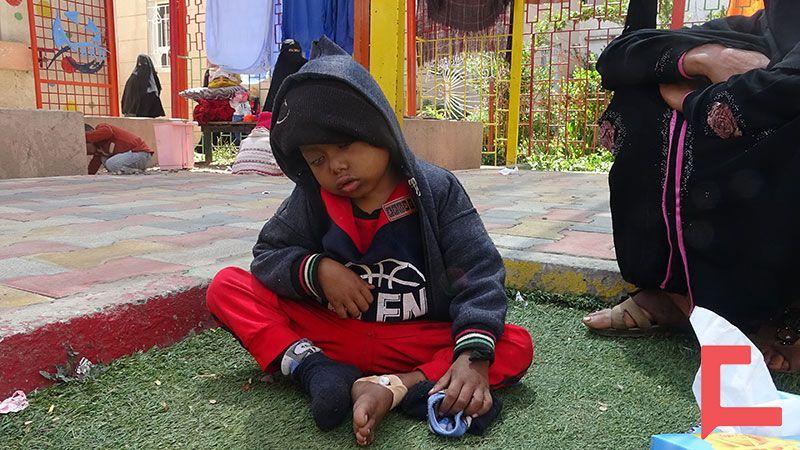 أطفال اليمن في مواجهة لوكيميا العدوان