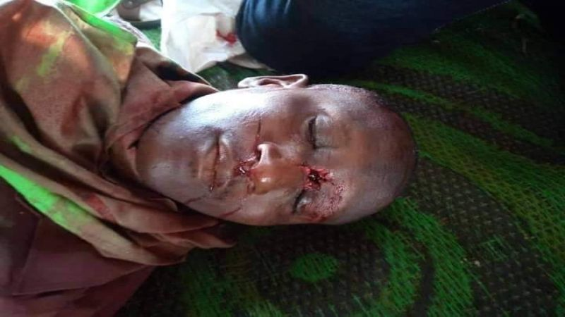 3 شهداء على خطّ الحسين (ع) في نيجيريا