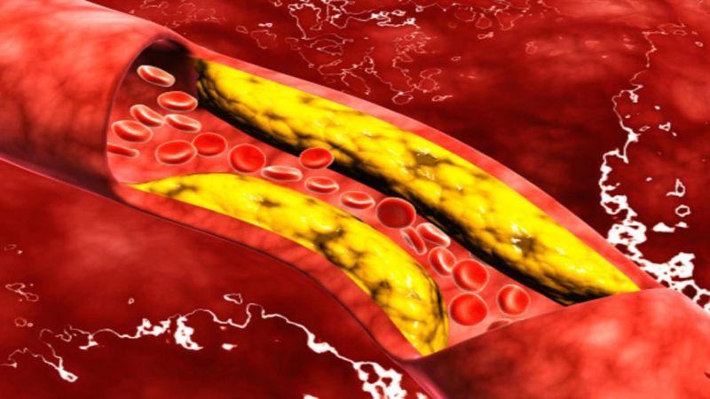 """ثلاث طرق مهمة لخفض مستويات الكوليسترول  """"الضار"""" بسرعة"""
