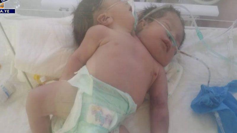 في اليمن.. توأم سيامي ضحية لوحشية الحصار السعودي