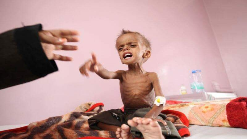 اليمن .. وفاة امرأة و6 مواليد كل ساعتين جراء العدوان السعودي